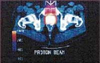 proton_image
